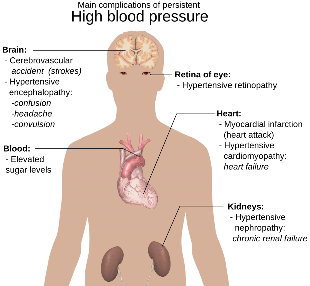 The main complications of high blood pressure, or hypertension
