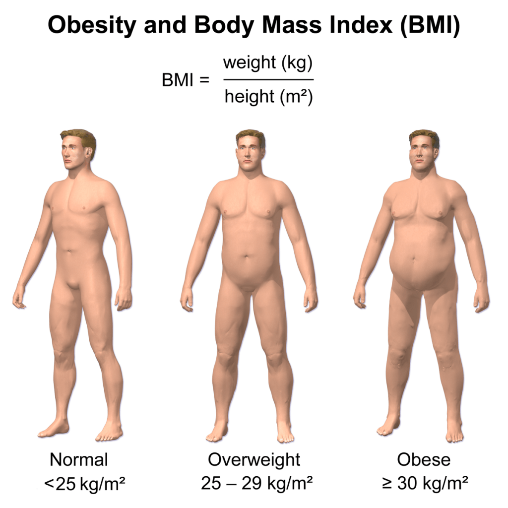 Infographic showing relative comparison of BMI scores
